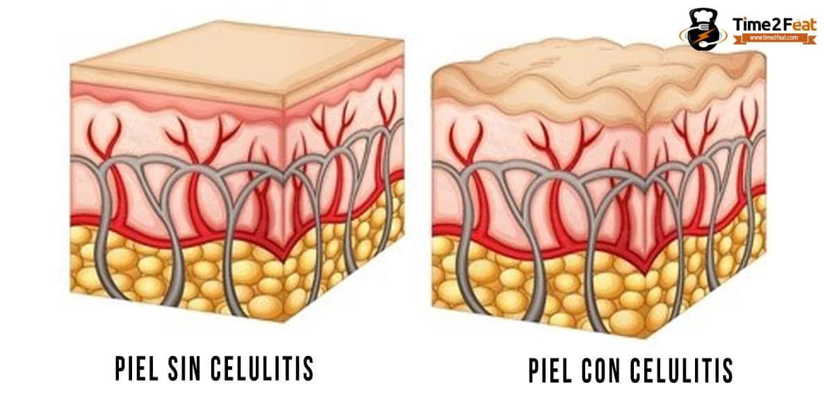 celulitis reducir eliminar remedios tipos
