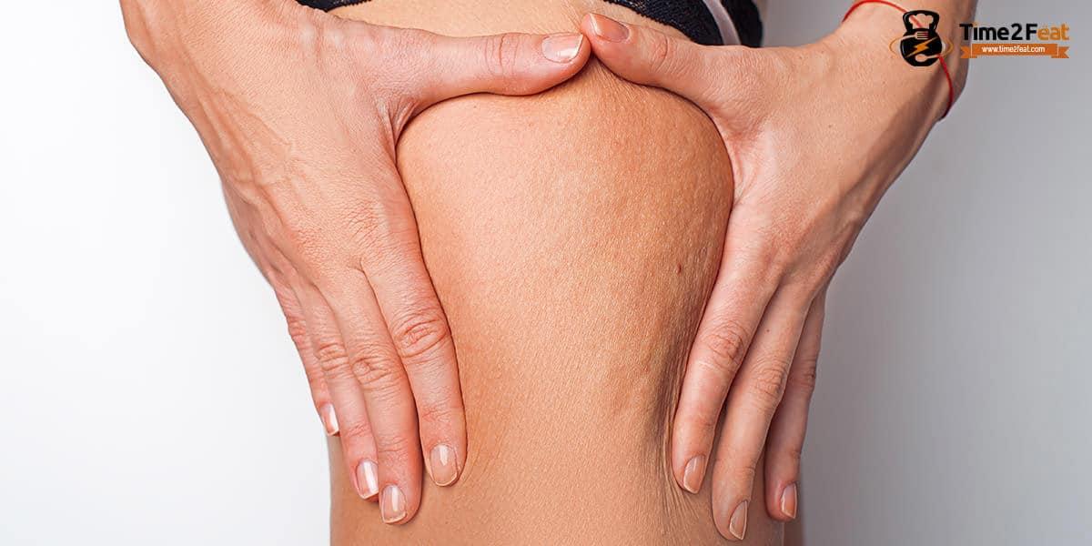 celulitis reducir eliminar remedios cremas tipos